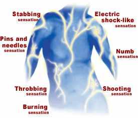 neuropathic-pain